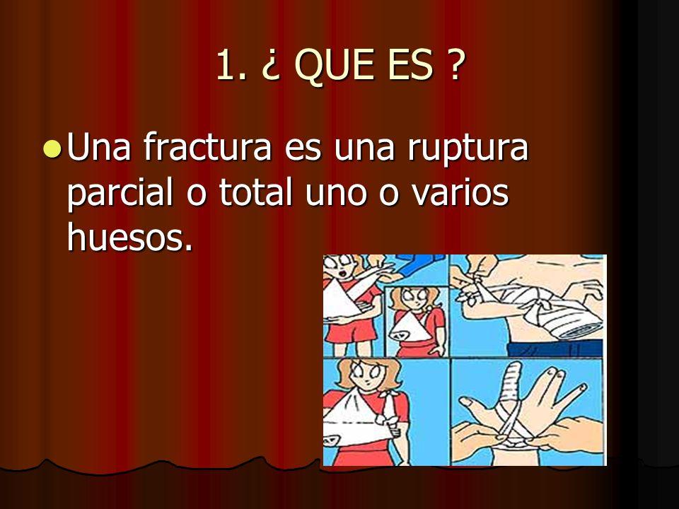 2.TIPOS DE FRACTURAS Fractura abierta: el hueso atraviesa la piel.