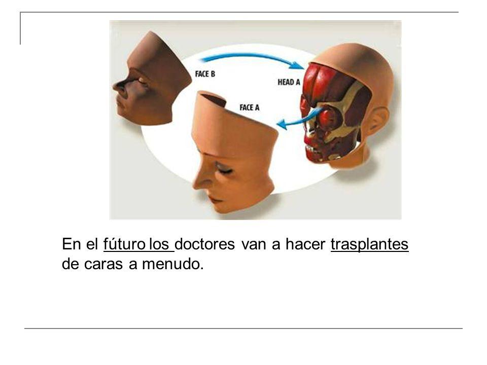 En el fúturo los doctores van a hacer trasplantes de caras a menudo.