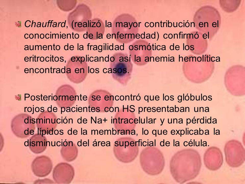 Crisis hemolíticas.Infecciones virales.