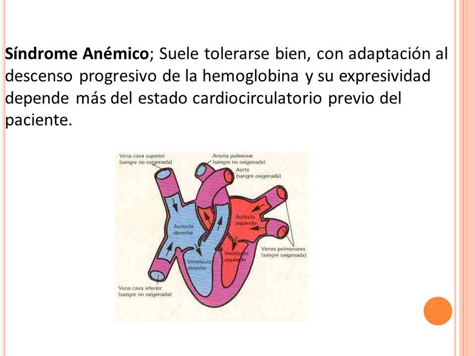 Síndrome Anémico; Suele tolerarse bien, con adaptación al descenso progresivo de la hemoglobina y su expresividad depende más del estado cardiocircula