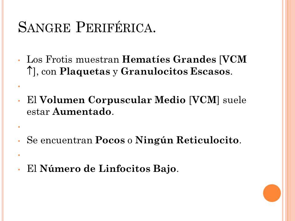 S ANGRE P ERIFÉRICA. Los Frotis muestran Hematíes Grandes [ VCM ], con Plaquetas y Granulocitos Escasos. El Volumen Corpuscular Medio [ VCM ] suele es