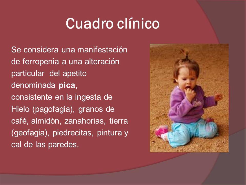 Cuadro clínico Se considera una manifestación de ferropenia a una alteración particular del apetito denominada pica, consistente en la ingesta de Hiel