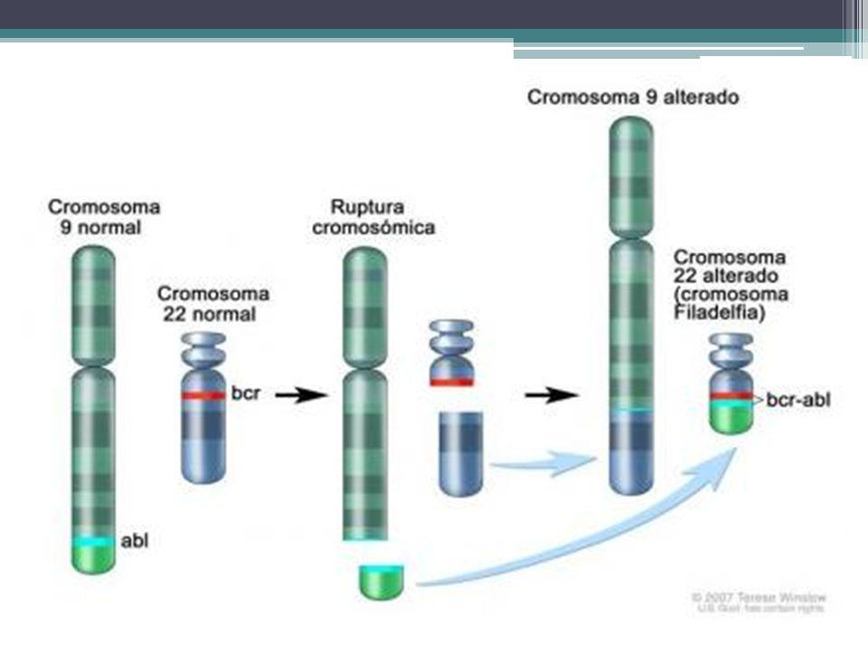 Leucemia mieloide crónica en crisis blástica.