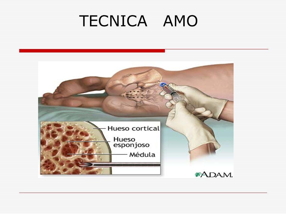TECNICA AMO