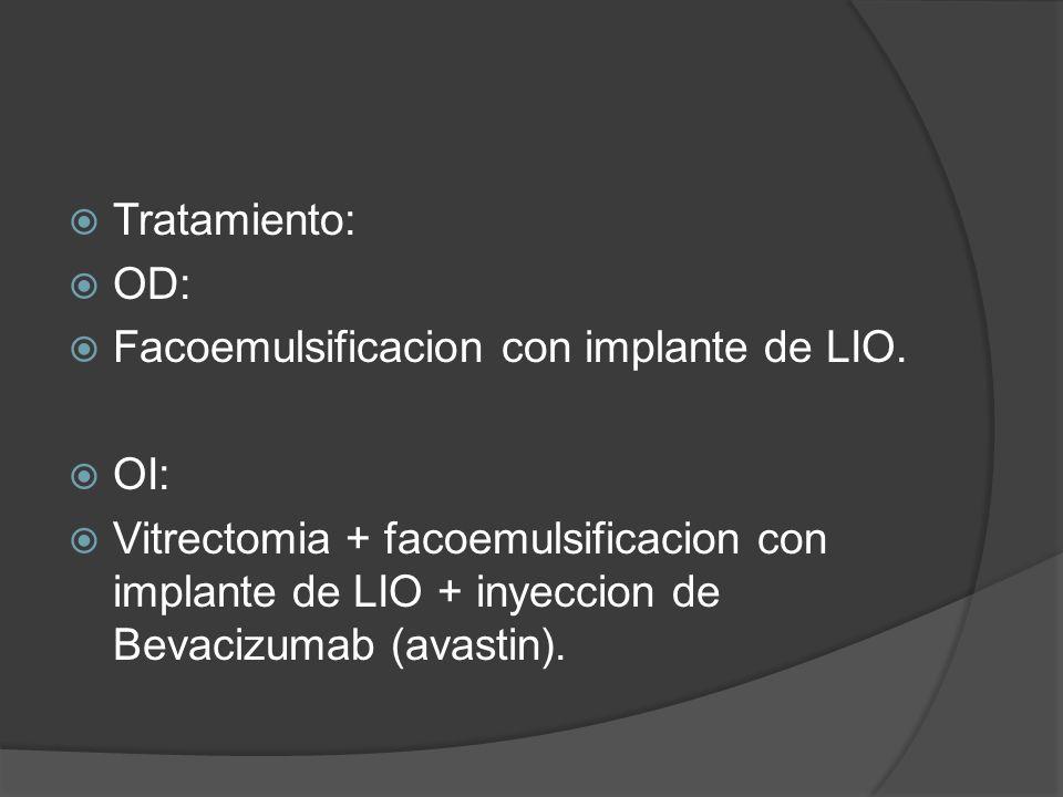 Tratamiento: OD: Facoemulsificacion con implante de LIO. OI: Vitrectomia + facoemulsificacion con implante de LIO + inyeccion de Bevacizumab (avastin)