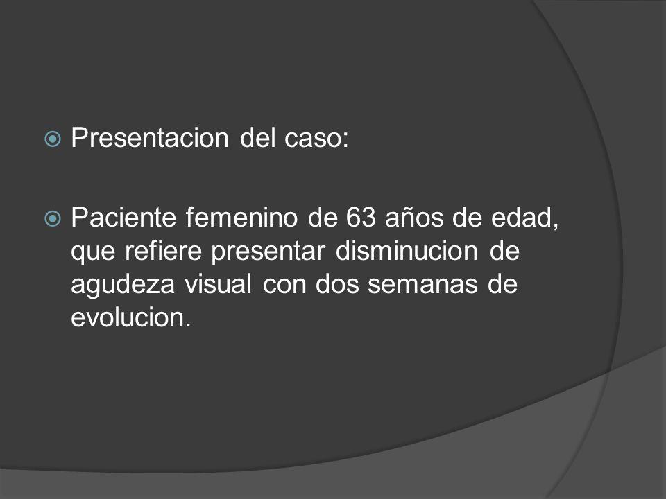 Presentacion del caso: Paciente femenino de 63 años de edad, que refiere presentar disminucion de agudeza visual con dos semanas de evolucion.