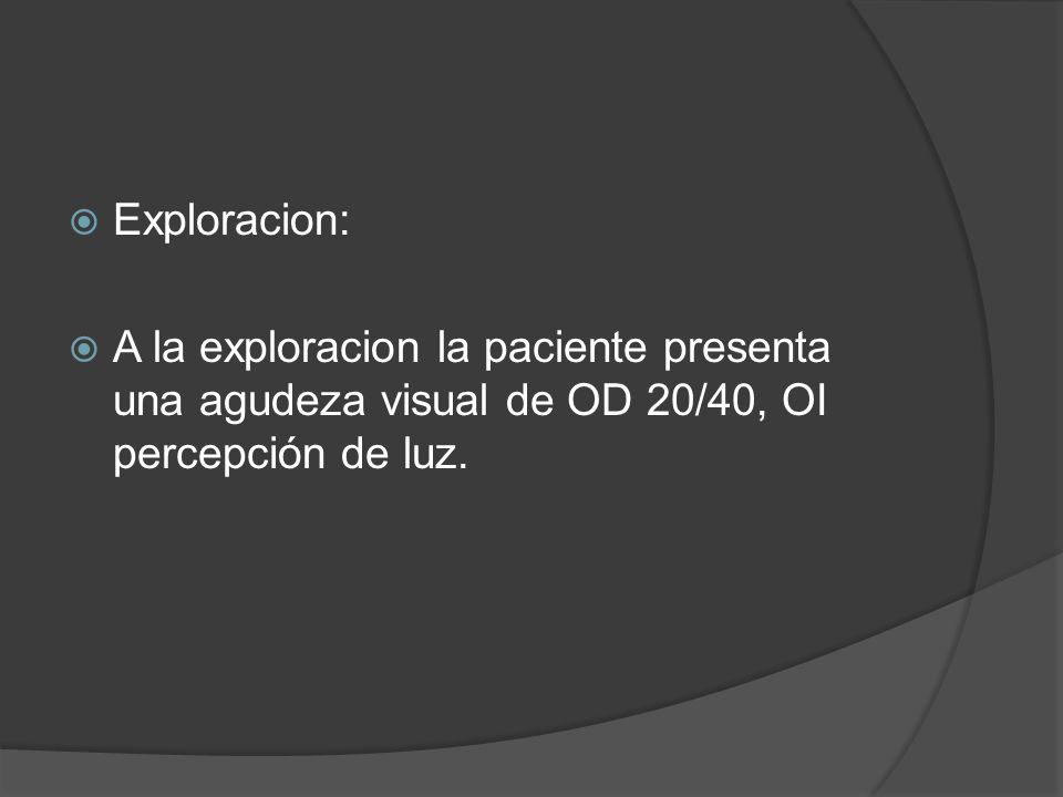 En segmento anterior: Catarata subcapsular de lll G en ambos ojos.