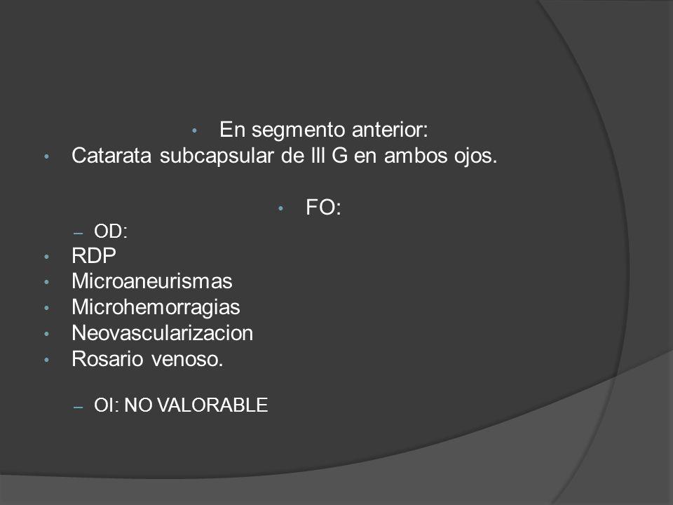 En segmento anterior: Catarata subcapsular de lll G en ambos ojos. FO: – OD: RDP Microaneurismas Microhemorragias Neovascularizacion Rosario venoso. –