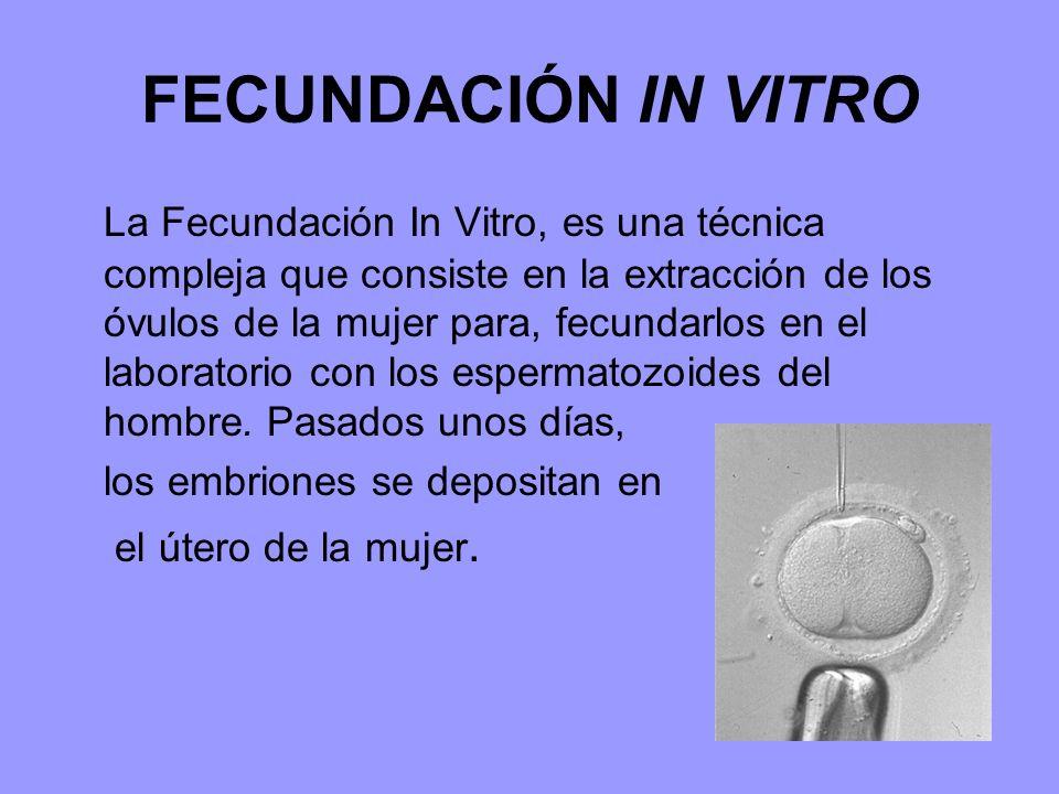 FECUNDACIÓN IN VITRO La Fecundación In Vitro, es una técnica compleja que consiste en la extracción de los óvulos de la mujer para, fecundarlos en el laboratorio con los espermatozoides del hombre.
