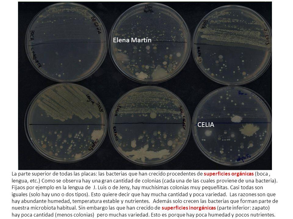 CELIA La parte superior de todas las placas: las bacterias que han crecido procedentes de superficies orgánicas (boca, lengua, etc.) Como se observa h