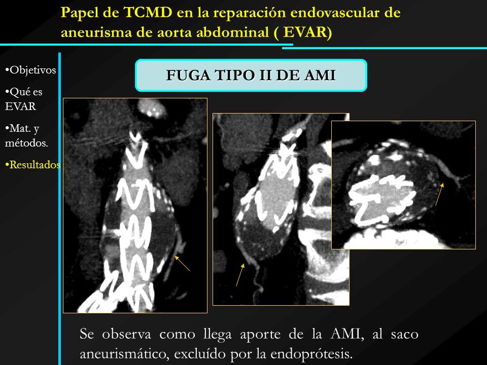 FUGA TIPO II DE AMI Se observa como llega aporte de la AMI, al saco aneurismático, excluído por la endoprótesis. Papel de TCMD en la reparación endova