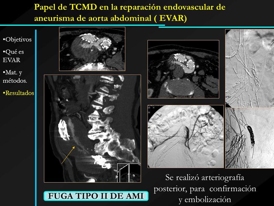 Papel de TCMD en la reparación endovascular de aneurisma de aorta abdominal ( EVAR) FUGA TIPO II DE AMI Se realizó arteriografía posterior, para confi