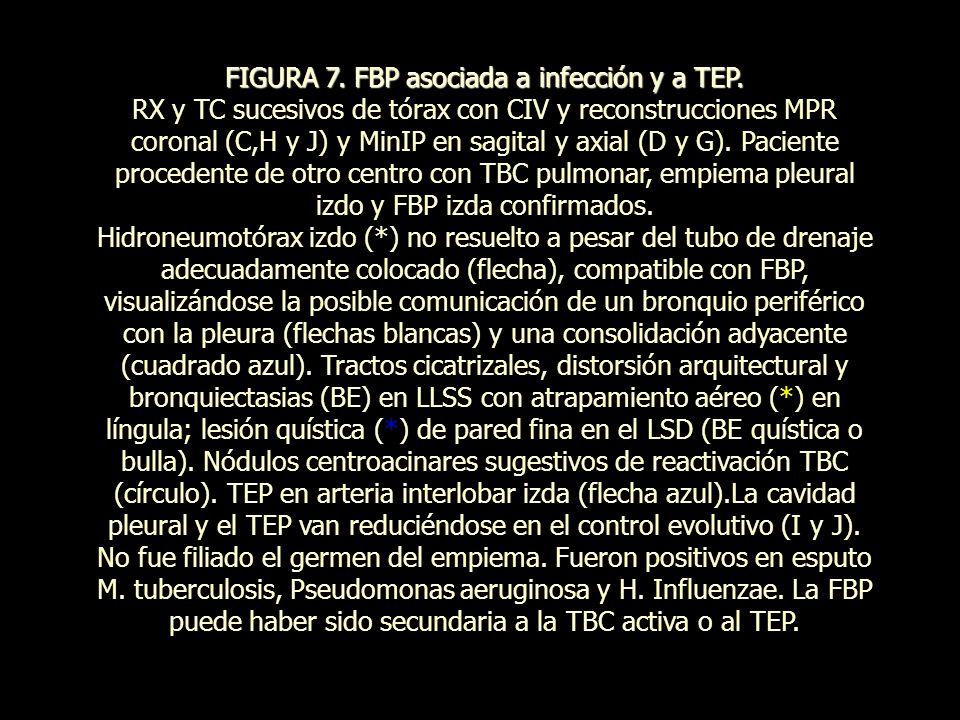FIGURA 7. FBP asociada a infección y a TEP.