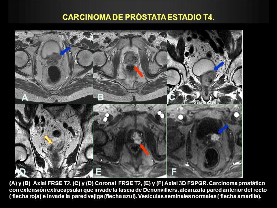 CARCINOMA DE PRÓSTATA ESTADIO T4. ( A) y (B) Axial FRSE T2. (C) y (D) Coronal FRSE T2, (E) y (F) Axial 3D FSPGR. Carcinoma prostático con extensión ex