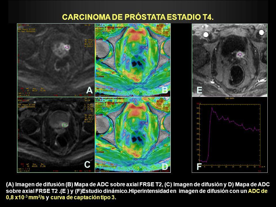 CARCINOMA DE PRÓSTATA ESTADIO T4. ( A) Imagen de difusión (B) Mapa de ADC sobre axial FRSE T2, (C) Imagen de difusión y D) Mapa de ADC sobre axial FRS