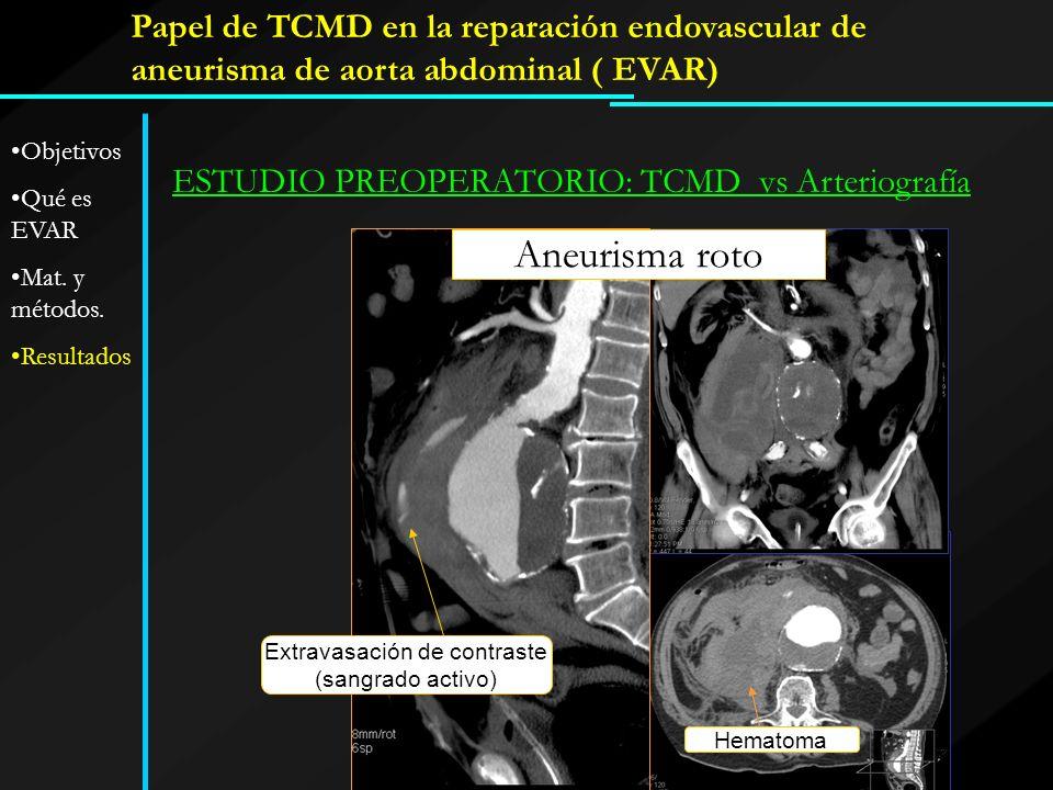 Papel de TCMD en la reparación endovascular de aneurisma de aorta abdominal ( EVAR) ESTUDIO PREOPERATORIO: TCMD vs Arteriografía Aneurisma roto Extrav