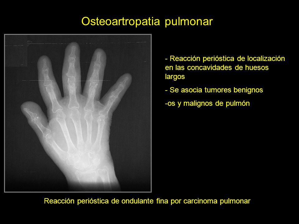 Reacción perióstica de ondulante fina por carcinoma pulmonar Osteoartropatia pulmonar - Reacción perióstica de localización en las concavidades de hue
