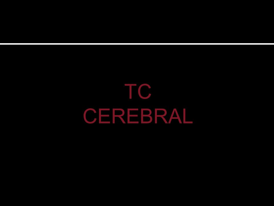 TC sin contraste donde se observa una masa intraventricular derecha, bien definida, heterogénea, de predominio hiperdenso respecto a la sustancia gris con focos hipodensos internos.
