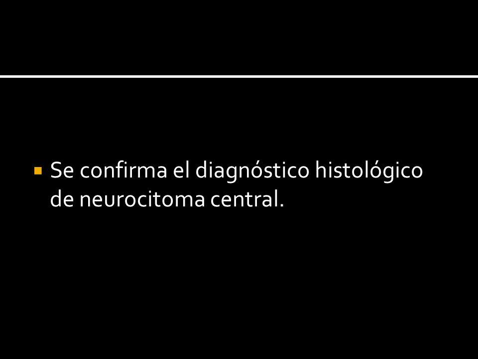 Se confirma el diagnóstico histológico de neurocitoma central.