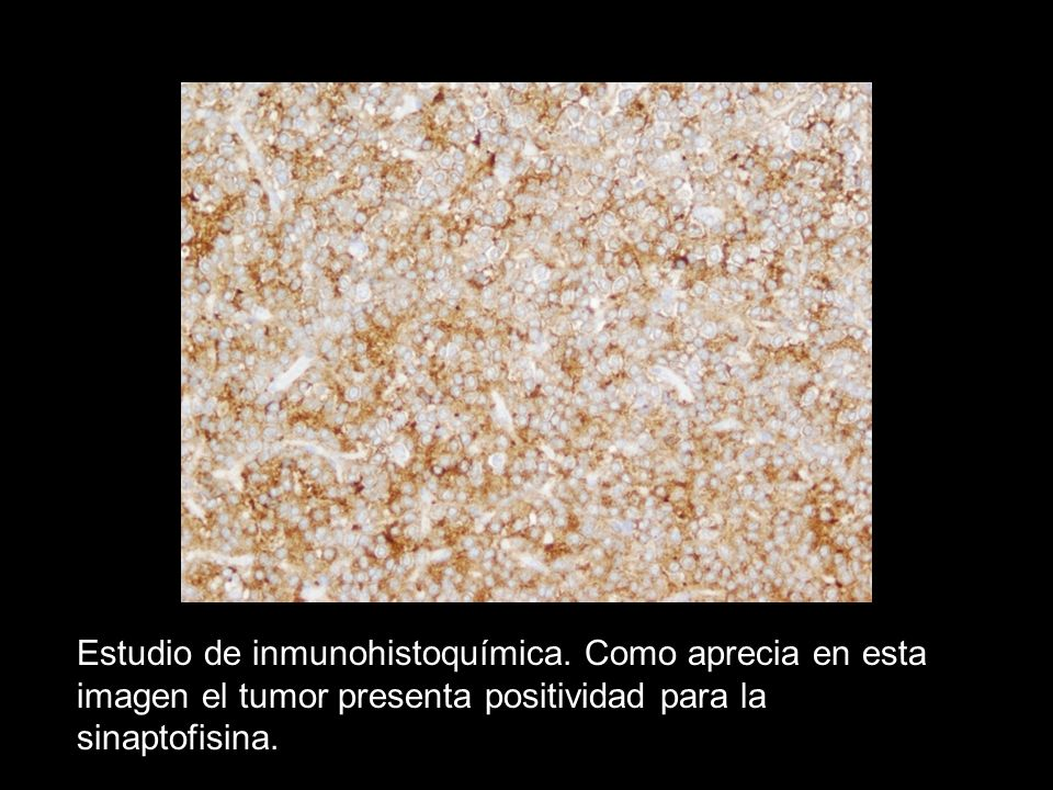 Estudio de inmunohistoquímica. Como aprecia en esta imagen el tumor presenta positividad para la sinaptofisina.