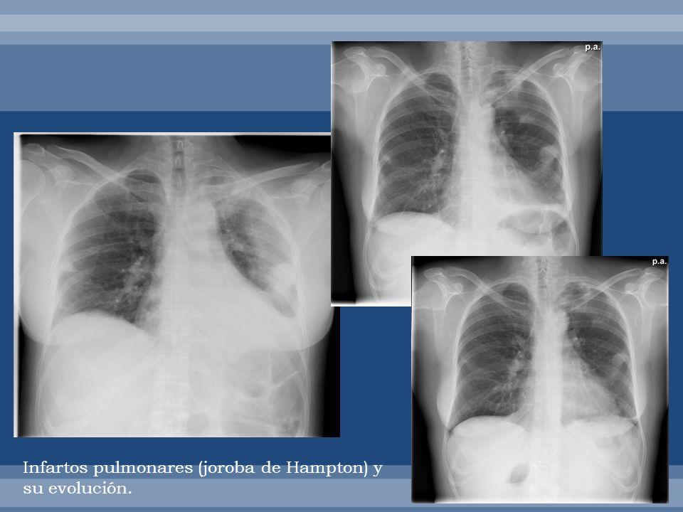 Defectos de repleción en arterias pulmonares y ventrículo derecho