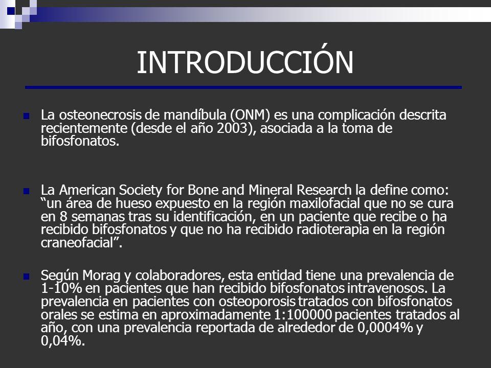 INTRODUCCIÓN La osteonecrosis de mandíbula (ONM) es una complicación descrita recientemente (desde el año 2003), asociada a la toma de bifosfonatos. L