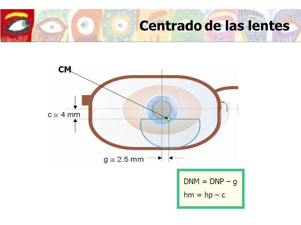 Centrado de las lentes DNM = DNP – g hm = hp – c CM