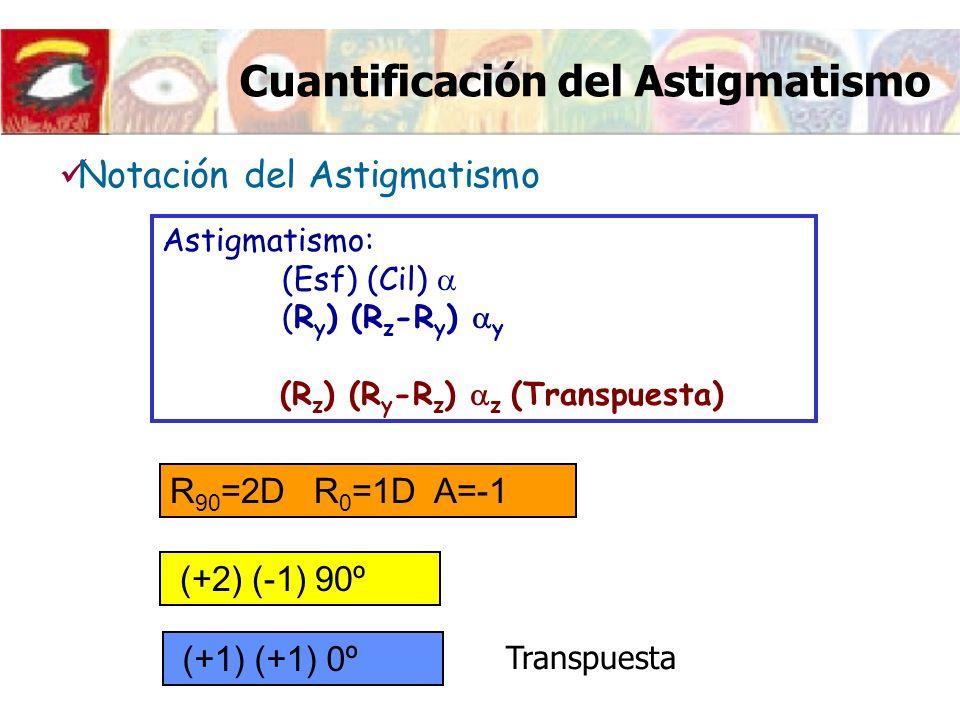 Cuantificación del Astigmatismo Astigmatismo: (Esf) (Cil) (R y ) (R z -R y ) y (R z ) (R y -R z ) z (Transpuesta) R 90 =2D R 0 =1D A=-1 (+2) (-1) 90º