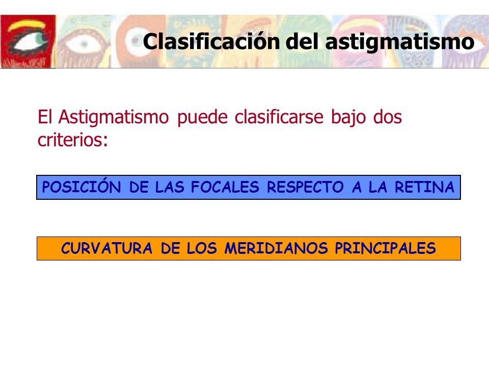 Clasificación del astigmatismo POSICIÓN DE LAS FOCALES RESPECTO A LA RETINA El Astigmatismo puede clasificarse bajo dos criterios: CURVATURA DE LOS ME