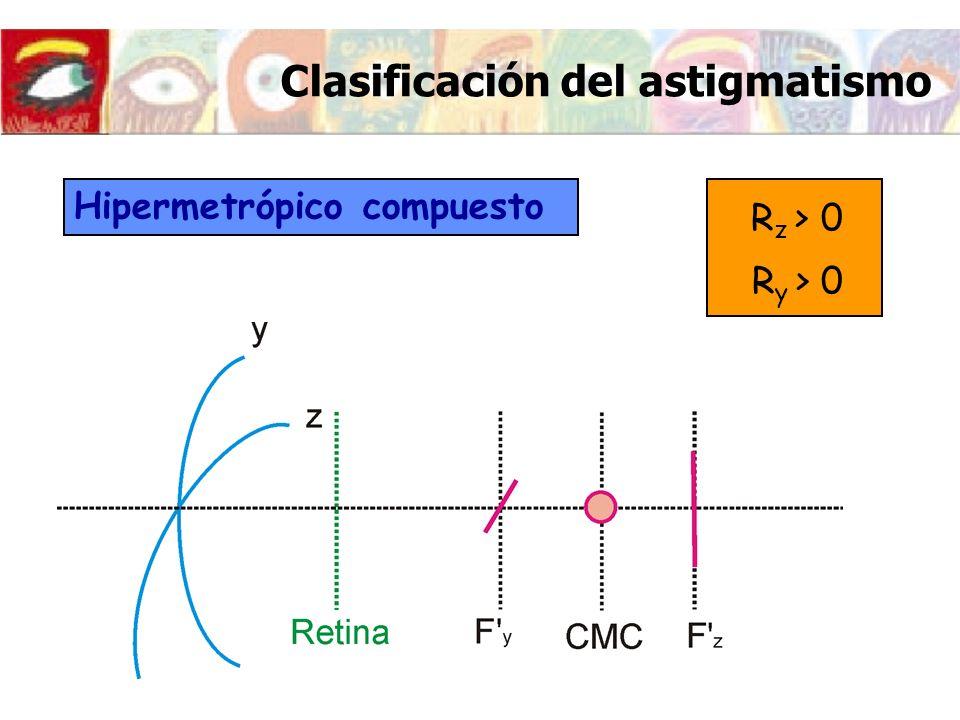Clasificación del astigmatismo Hipermetrópico compuesto R z > 0 R y > 0