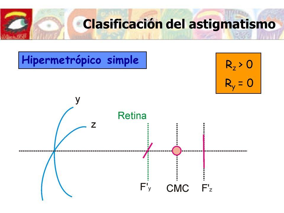 Clasificación del astigmatismo Hipermetrópico simple R z > 0 R y = 0