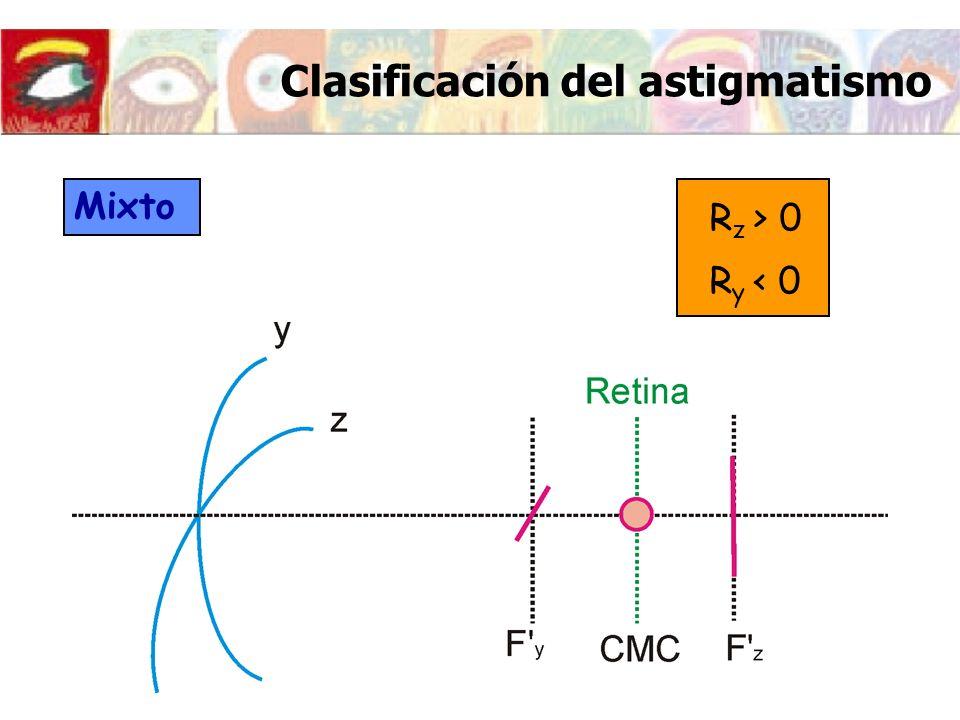 Clasificación del astigmatismo Mixto R z > 0 R y < 0