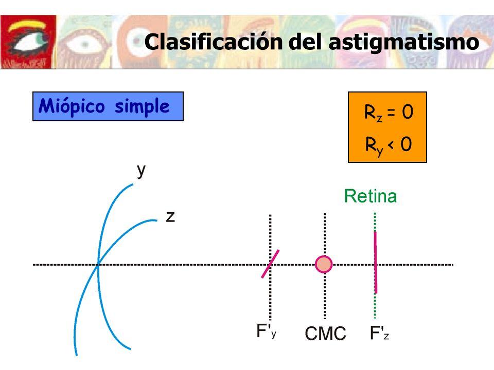Clasificación del astigmatismo Miópico simple R z = 0 R y < 0