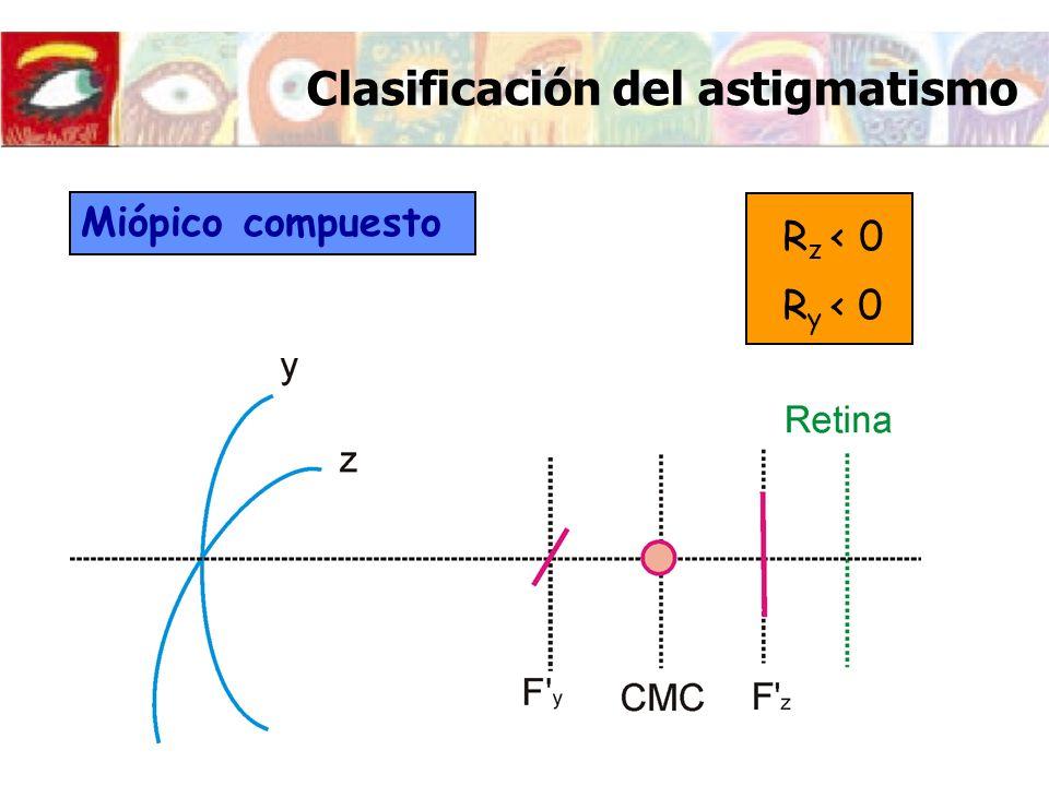 Clasificación del astigmatismo Miópico compuesto R z < 0 R y < 0