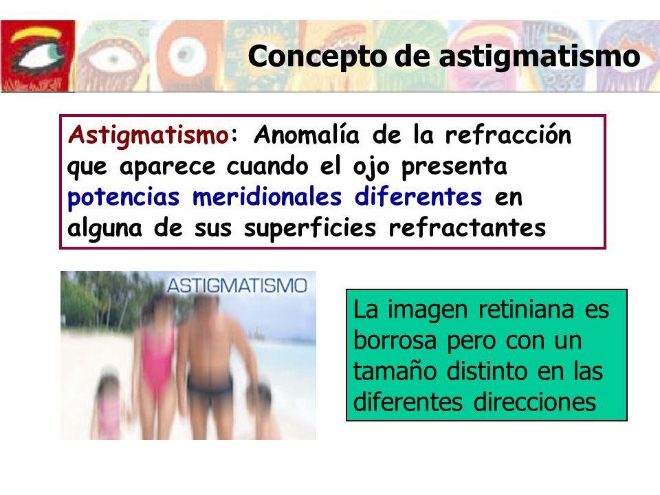 Concepto de astigmatismo CAUSAS DEL ASTIGMATISMO Astigmatismo de curvatura: Superficies no esféricas (Primera superficie de la córnea) Astigmatismo de índice Astigmatismo irregular Astigmatismo bajo 0.2D < A < 1D Astigmatismo medio A < 3D Astigmatismo alto A > 3D