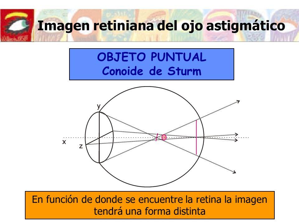 Imagen retiniana del ojo astigmático OBJETO PUNTUAL Conoide de Sturm En función de donde se encuentre la retina la imagen tendrá una forma distinta