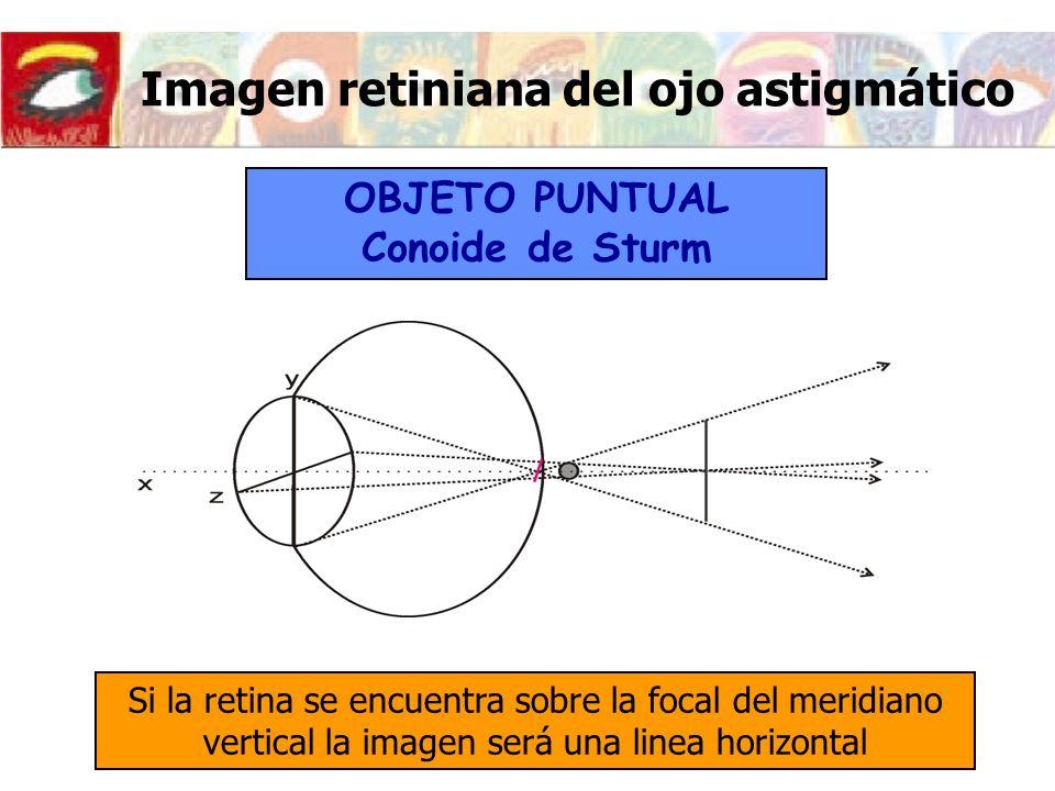 Imagen retiniana del ojo astigmático Si la retina se encuentra sobre la focal del meridiano vertical la imagen será una linea horizontal OBJETO PUNTUA