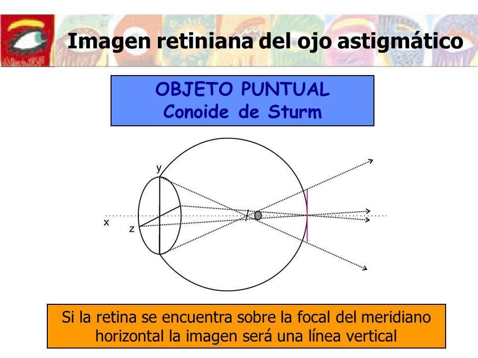 Imagen retiniana del ojo astigmático Si la retina se encuentra sobre la focal del meridiano horizontal la imagen será una línea vertical OBJETO PUNTUA