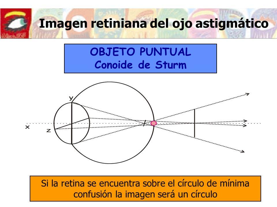 Imagen retiniana del ojo astigmático Si la retina se encuentra sobre el círculo de mínima confusión la imagen será un círculo OBJETO PUNTUAL Conoide d