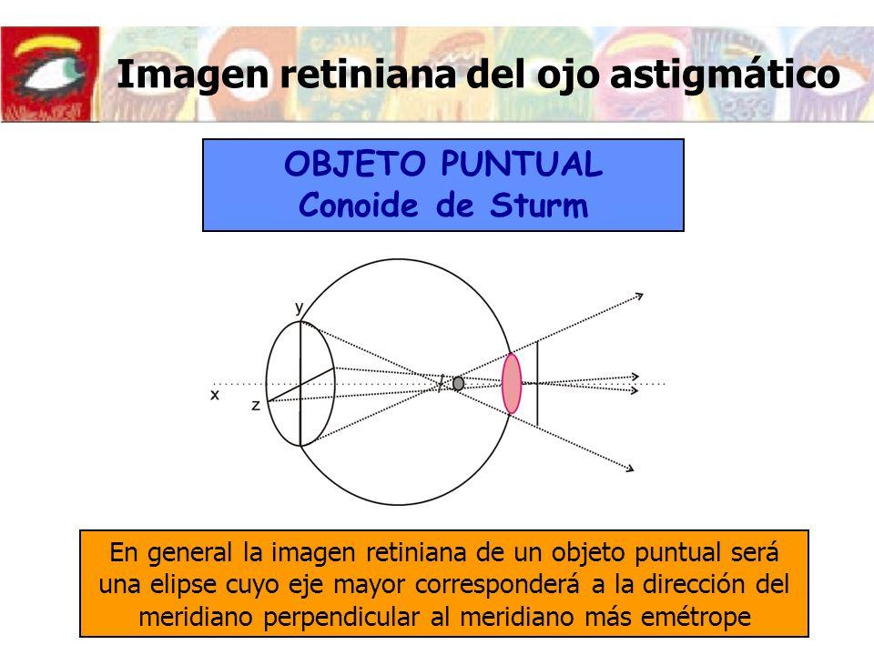 Imagen retiniana del ojo astigmático En general la imagen retiniana de un objeto puntual será una elipse cuyo eje mayor corresponderá a la dirección d