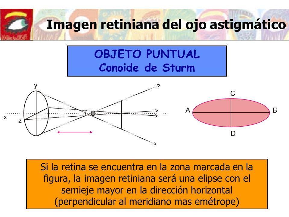 Imagen retiniana del ojo astigmático Si la retina se encuentra en la zona marcada en la figura, la imagen retiniana será una elipse con el semieje may
