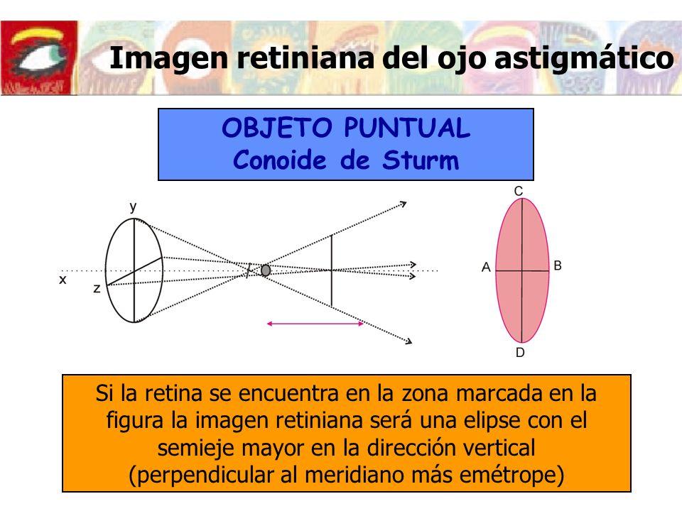 Imagen retiniana del ojo astigmático Si la retina se encuentra en la zona marcada en la figura la imagen retiniana será una elipse con el semieje mayo