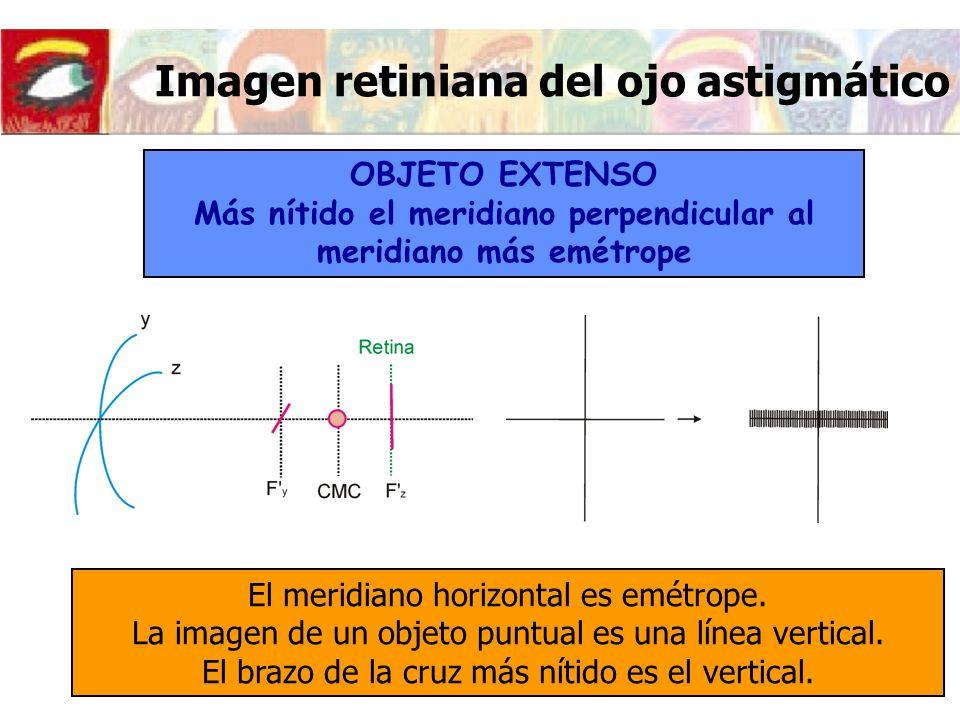 Imagen retiniana del ojo astigmático OBJETO EXTENSO Más nítido el meridiano perpendicular al meridiano más emétrope El meridiano horizontal es emétrop