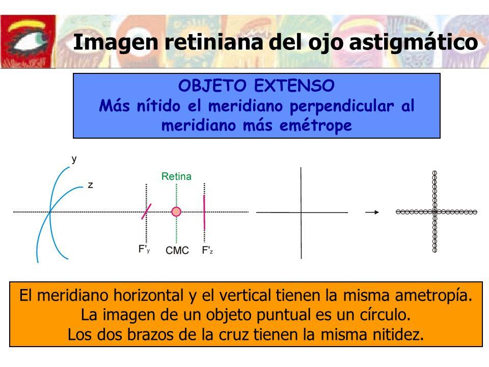 Imagen retiniana del ojo astigmático OBJETO EXTENSO Más nítido el meridiano perpendicular al meridiano más emétrope El meridiano horizontal y el verti