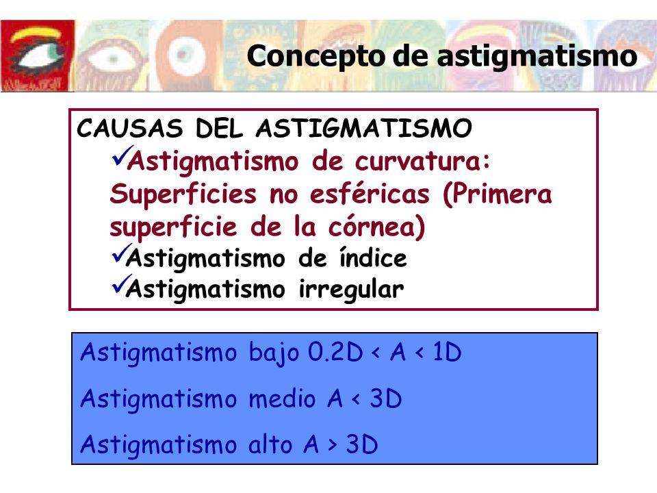 Concepto de astigmatismo CAUSAS DEL ASTIGMATISMO Astigmatismo de curvatura: Superficies no esféricas (Primera superficie de la córnea) Astigmatismo de