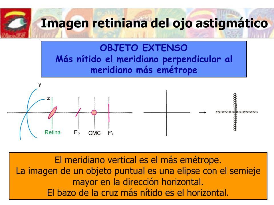 Imagen retiniana del ojo astigmático OBJETO EXTENSO Más nítido el meridiano perpendicular al meridiano más emétrope El meridiano vertical es el más em