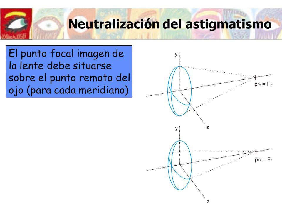 Neutralización del astigmatismo El punto focal imagen de la lente debe situarse sobre el punto remoto del ojo (para cada meridiano)