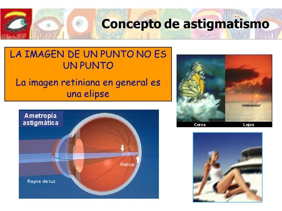 Imagen retiniana del ojo astigmático Si la retina se encuentra en la zona marcada en la figura, la imagen retiniana será una elipse con el semieje mayor en la dirección horizontal (perpendicular al meridiano mas emétrope) OBJETO PUNTUAL Conoide de Sturm