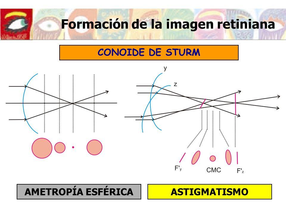 Imagen retiniana del ojo astigmático Si la retina se encuentra en la zona marcada en la figura la imagen retiniana será una elipse con el semieje mayor en la dirección vertical (perpendicular al meridiano más emétrope) OBJETO PUNTUAL Conoide de Sturm