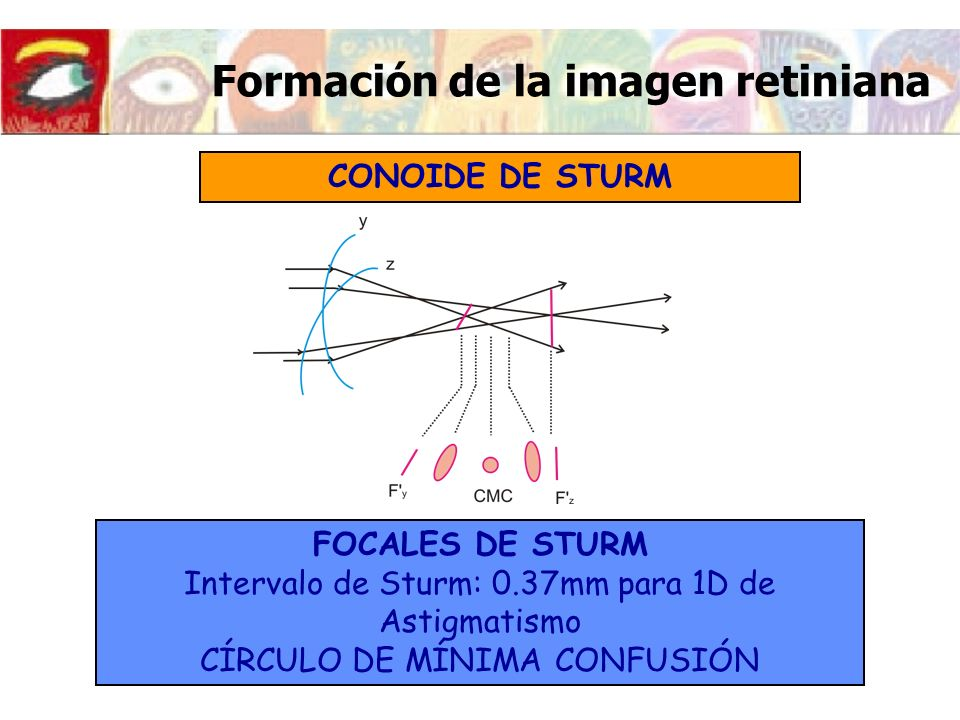 Imagen retiniana del ojo astigmático OBJETO EXTENSO Más nítido el meridiano perpendicular al meridiano más emétrope El meridiano vertical es emétrope.